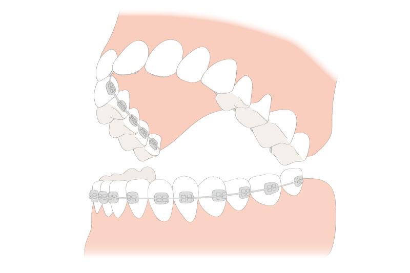 上顎裏側と下顎表側矯正